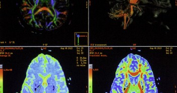 Brain scan images displayed on the MRI console screen.  Nick Gangemi // Assistant Photo Editor